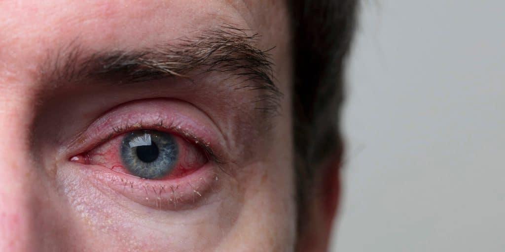 Total Optical - blog image Blepharitis