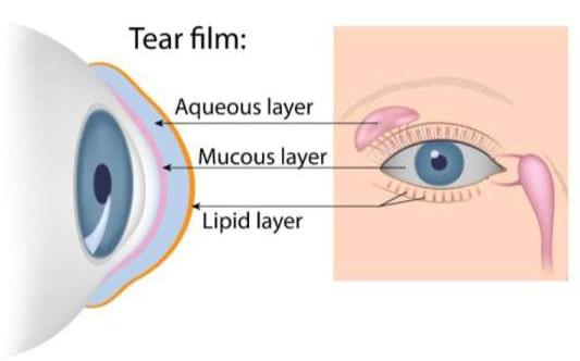 total optical 3dry eye diagram image