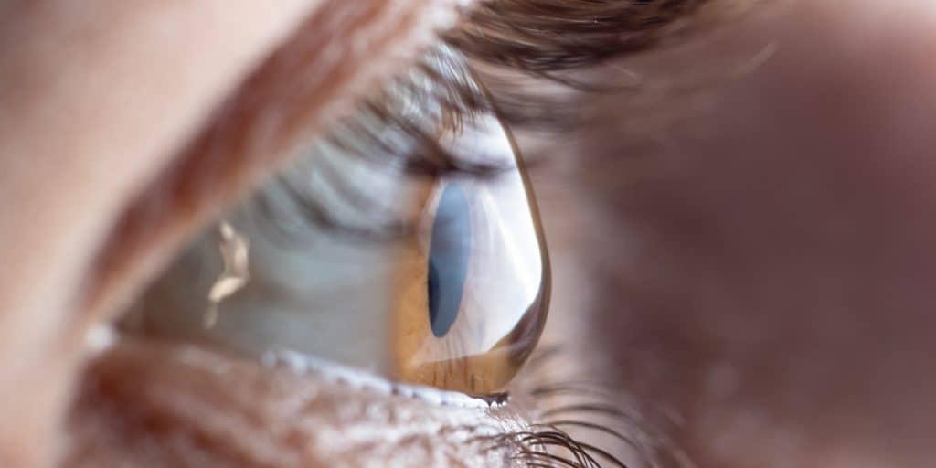 Total optical - blog Keratoconus eye health prevention