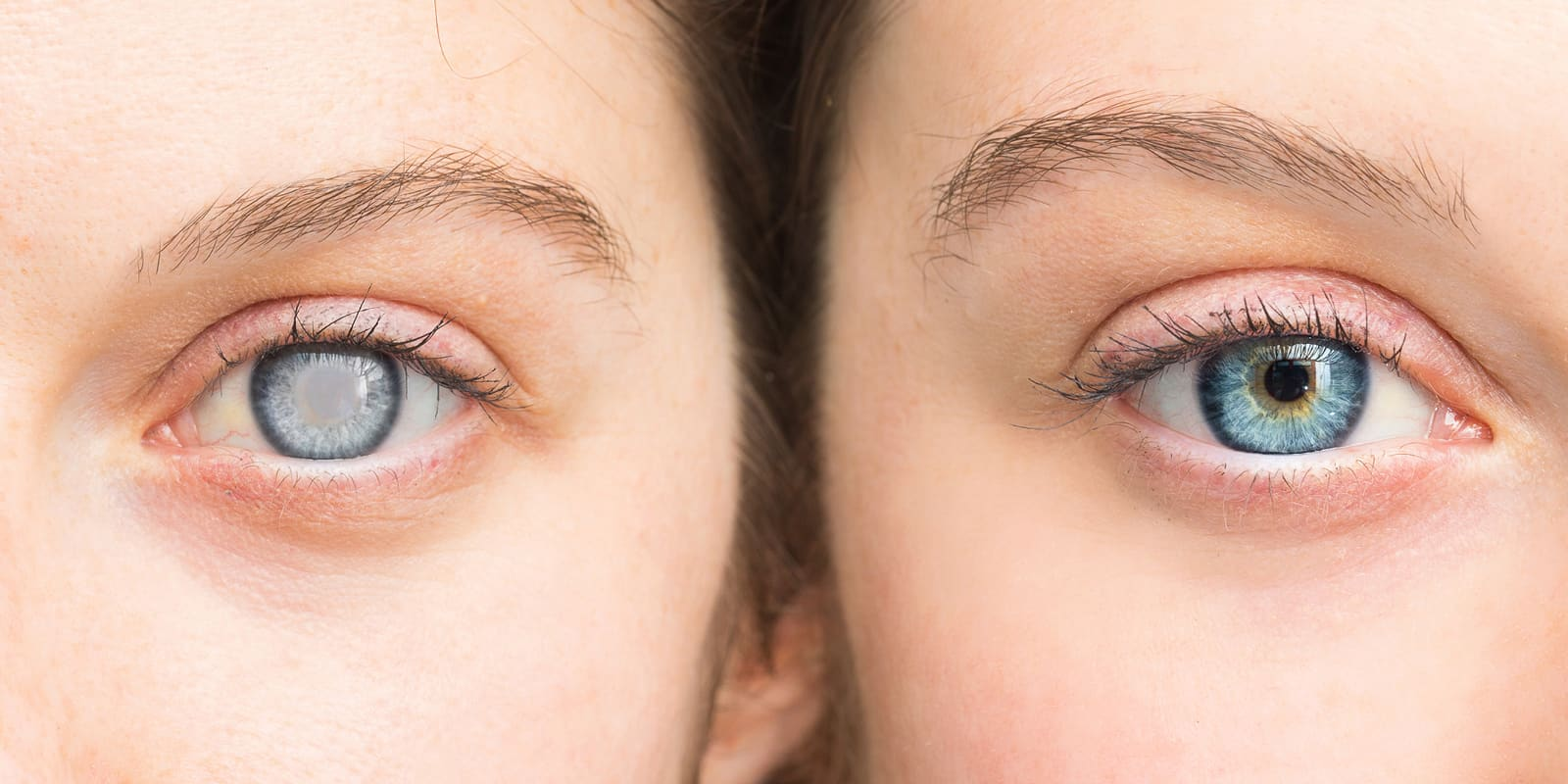 Cataracts – A nuisance that can be corrected