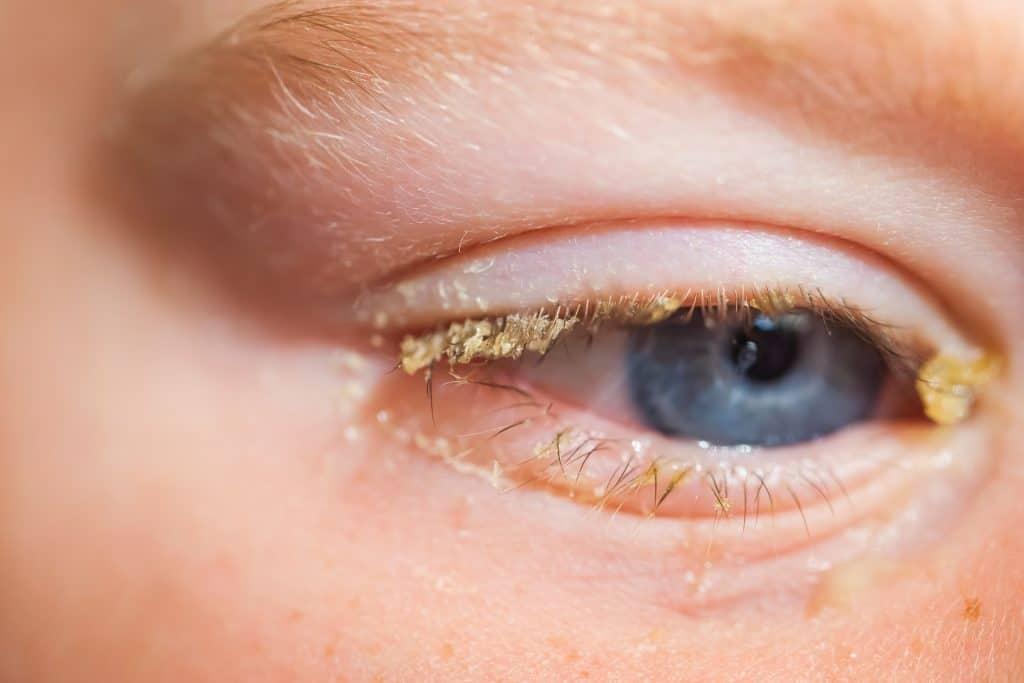 Total optical Purulent,Conjunctivitis,In,Children